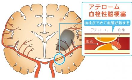 脳 梗塞 症状